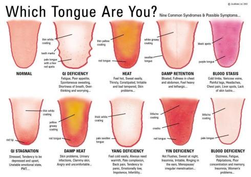 TCM-Which-Tongue-Are-You4